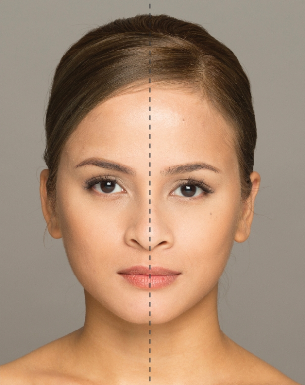 Merz Aesthetics – Nurin Nisha M. Heallmy (Facial Symmetry)